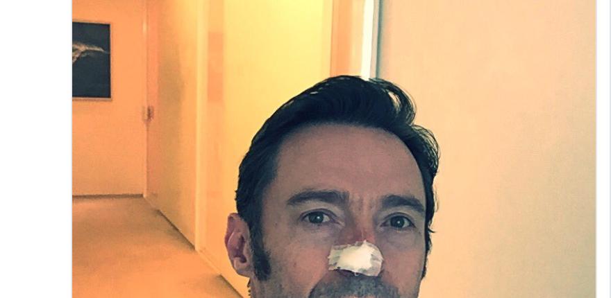 Hugh Jackman seta operazione